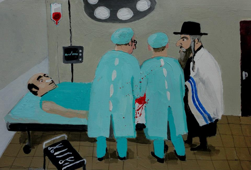 Circumcision of an adult